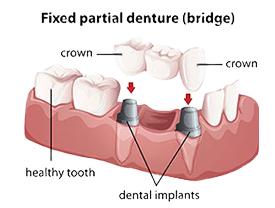 Irvine Preventative Dentist | dental bridges | Roya Toomarian DDS